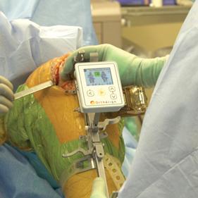 Ολική αρθροπλαστική γόνατος με τη χρήση του KneeAlign2 - Ζωγραφάκης Απόστολος
