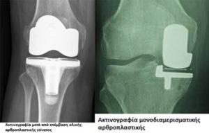Αρθρίτιδα γόνατος - Απόστολος Ζωγραφάκης - Ορθοπεδικός